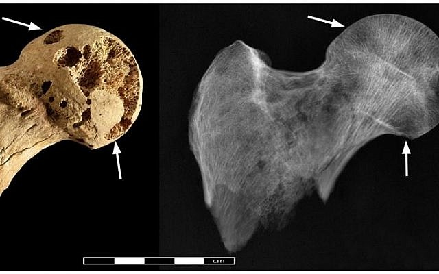 Image showing lesions thought to have been caused by cancer on the bones of a Sudanese man buried in 1200 BC. (photo credit: CC BY Binder et al/PLOS One)