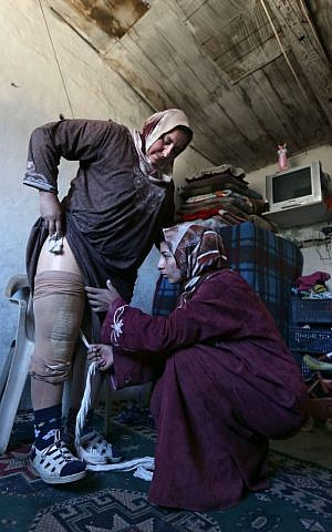Reem Diab, 34, who lost her leg on October 25, 2012  takes off her artificial leg with the help of her relative, right. March 27, 2014 (photo credit: AP Photo/Bilal Hussein)