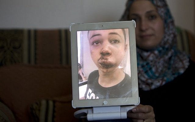 The mother of Tariq Abu Khdeir (portrait), the 15-year-old cousin of the murdered Palestinian youth Mohammed, shows a picture of her son that she took at the hospital after he was allegedly beaten by Israeli border police in East Jerusalem on July 5, 2014 (photo credit: AFP/Ahmad Gharabli)