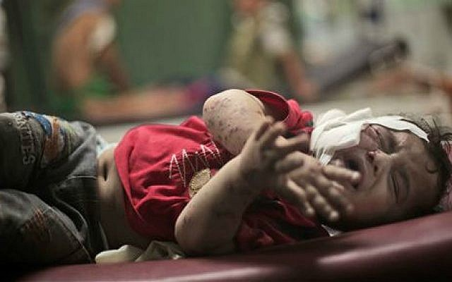 A Palestinian boy cries while receiving treatment for injuries caused by an Israeli strike at a UN school in Jebaliya refugee camp, at the Kamal Adwan hospital in Beit Lahiya, northern Gaza Strip, Wednesday, July 30, 2014 (photo credit: AP Photo/Khalil Hamra)