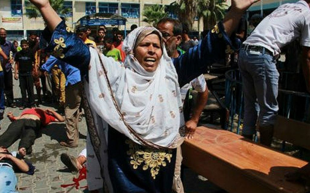 A woman overcome by emotion stands between dead bodies and wounded Palestinians outside a UN run school in Rafah, in the southern Gaza Strip, Sunday, Aug. 3, 2014 (photo credit: AP/Hatem Ali)