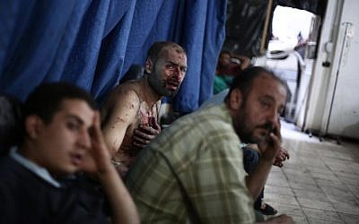 Wounded Syrian men wait for treatment at a makeshift hospital in the rebel-held town of Douma near Damascus on September 9, 2014, after reported airstrikes by Syrian government forces that killed over 10 people and wounded dozens. (photo credit: AFP/ABD DOUMANY)