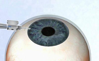 EyeYon's contact lenses (Photo credit: Courtesy)