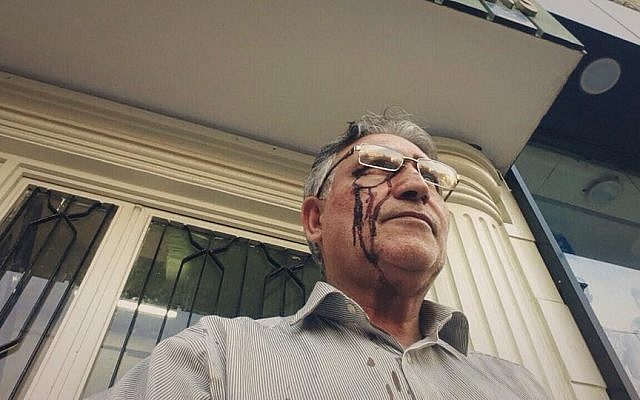 Illustrative: Mohammad Nourizad appears with a bloody face after protesting outside the home of Iran's Supreme Leader Ali Khaminei, October 14, 2014 (photo credit: courtesy/Abazar Noorizad)