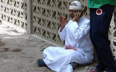 A Kuwaiti man with blood-stained clothes and a bandaged head uses a phone at the site of a suicide bombing at the Shi'ite Al-Imam al-Sadeq mosque during Friday prayers on June 26, 2015, in Kuwait City. (AFP PHOTO / STR)