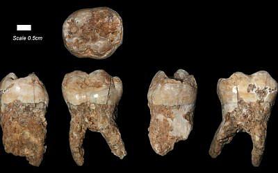 The teeth found at Qesem Cave outside of Tel Aviv (Courtesy: Prof. Israel Hershkovitz/Tel Aviv University)