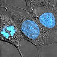 Human cancer cells with nuclei (specifically the DNA) stained blue. The central and right-most cell are in interphase, so the entire nuclei are labeled. The cell on the left is going through mitosis and its DNA has condensed.  (TenOfAllTrades/Wikipedia)