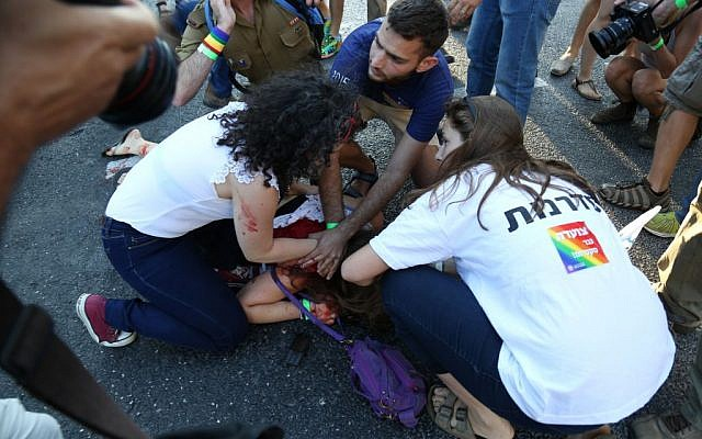 An injured woman after a stabbing in Jerusalem on July 30, 2015. (Eric Cortellessa/Times of Israel)