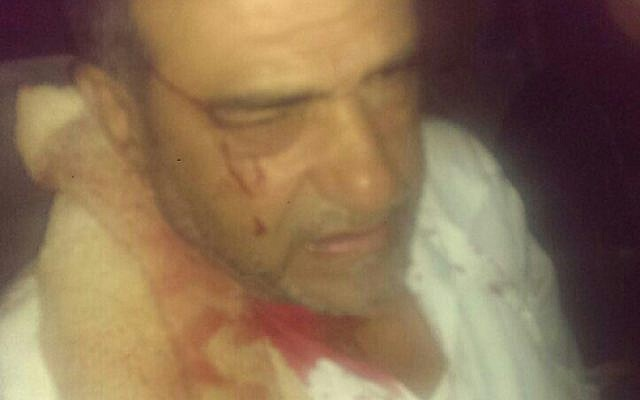 Imaad Abu Sharekh after being assaulted outside his home in Lod on August 2, 2015. Abu Sharekh claimed that the assailants were Jews, but Lod police claimed that the assailants were Arabs. (Courtesy)