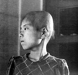 Aiko Ikemoto suffers hair loss after exposure to radiation in Hiroshima. The 11-year-old was on the second floor of a wooden house at about a mile from the epicenter. As a result of the radiation, hair loss began, followed by fever, loss of appetite and gum bleeding. She gradually recovered. (Shunkichi Kikuchi/Government of Japan/Wikimedia Commons)