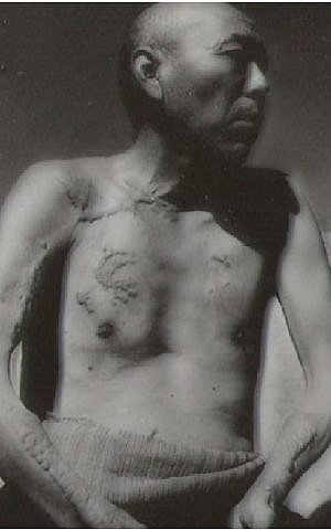 Japanese man with radiation-related injuries from atomic bombing during World War II. (US government/Wikimedia Commons)