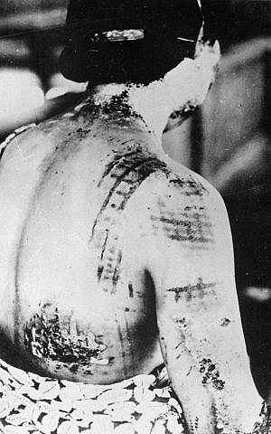 A Japanese casualty of the Hiroshima nuclear bomb. Her skin was burned in the same pattern as the kimono she was wearing at the time of the blast. (Wikimedia Commons)