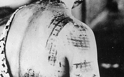 Illustrative: A Japanese casualty of the Hiroshima nuclear bomb. Her skin was burned in the same pattern as the kimono she was wearing at the time of the blast. (Wikimedia Commons)