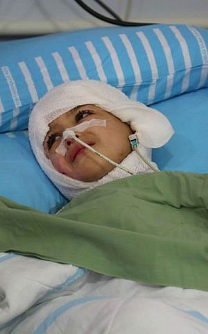 Five-year-old Ahmed Dawabsha lies in his hospital bed at The Chaim Sheba Medical Center at Tel Hashomer, August 24, 2015 (Eric Cortellessa/Times of Israel)