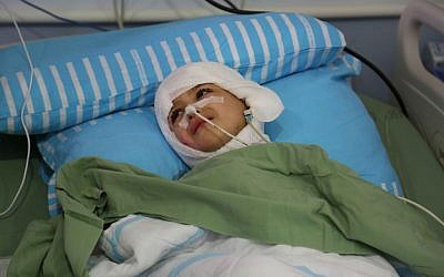 Five-year-old Ahmed Dawabsha lies in his hospital bed at the Chaim Sheba Medical Center at Tel Hashomer, August 24, 2015. (Eric Cortellessa/Times of Israel)