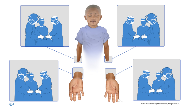An illustration of the four teams that simultaneously operated on Zion Harvey during his bilateral hand transplant in July 2015 at the Children's Hospital of Philadelphia. (courtesy CHOP)