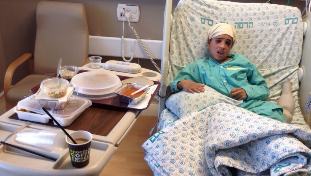 Ahmad Manasra, one of two cousins who went on a stabbing spree in Jerusalem on October 12, 2015 is seen at the Hadassah Ein Kerem Hospital in Jerusalem on October 15, 2015. Manasra was hit by a car while fleeing from the scene of the attack. (Courtesy)