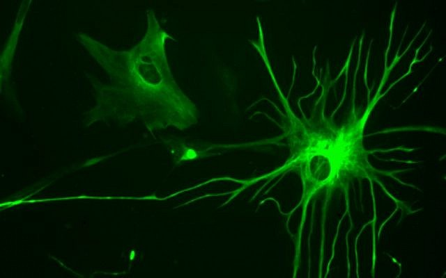 Illustrative: Glial cells known as astrocytes in a 23-week fetal brain culture. (Bruno Pascal/Wikipedia/CC BY-SA 3.0)