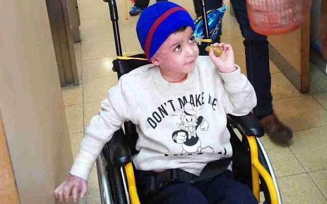 Ahmed Dawabsha in his room at Tel Hashomer Hospital in Ramat Gan, December 23, 2015 (Simona Weinglass/Times of Israel)