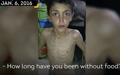 File: An image of a starving child in Madaya, Syria, a city that has been under siege by pro-government forces for six months. (screen capture: YouTube)