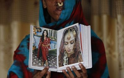 In this photo taken on Jan. 27, 2016, Sidra Kamwal shows pictures of herself before she was disfigured in an acid attack in Karachi, Pakistan. She had left her abusive husband and moved back in with her mother when another man proposed to her. The man refused to take no for an answer. He pestered her and harassed her. And then one day he told her that if couldn't have her, no one could, and threw acid in her face. (AP Photo/Shakil Adil)