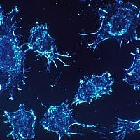 Illustrative photo of cancer cells (Pixabay)