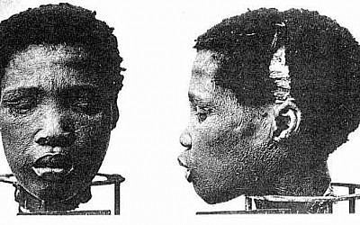 Head of Herero prisoner used for medical experimentation by German colonialists. (Wikipedia)
