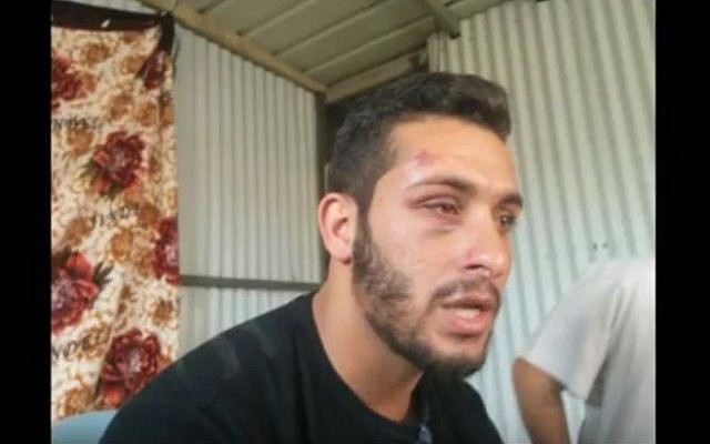 A photo of Maysam Abu Alqian taken after plainclothes police officers beat him during an arrest in Tel Aviv on May 22, 2016. (screen capture: YouTube)