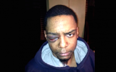 Taj Patterson was allegedly beaten by a group of Hasidic Jews, in Williamsburg, Brooklyn in 2013. (YouTube screen capture)