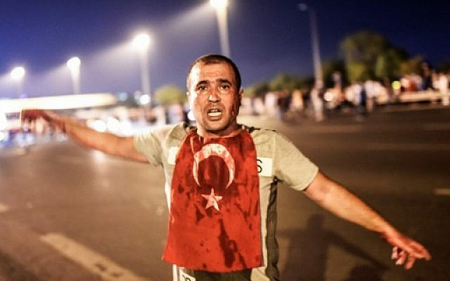 A man covered with blood stands near the Bosphorus bridge as Turkish military clash with people at the entrance to the bridge in Istanbul on July 16, 2016.  Turkish military forces on July 16 opened fire on crowds gathered in Istanbul following a coup attempt, causing casualties, an AFP photographer said. The soldiers opened fire on grounds around the first bridge across the Bosphorus dividing Europe and Asia, said the photographer, who saw wounded people being taken to ambulances. (AFP PHOTO / Bulent KILIC)