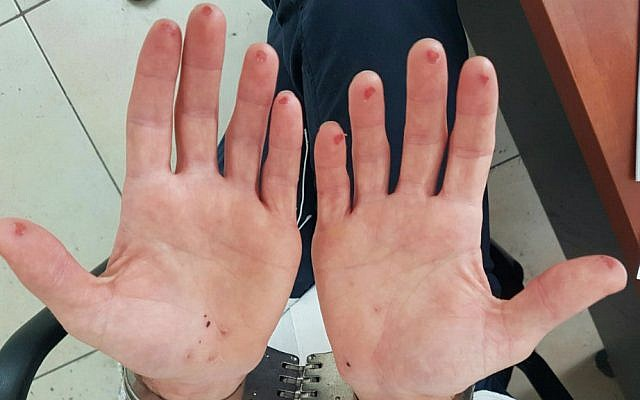 The hands of a man who tried to cut off his fingerprints after he was arrested in a failed attempt to avoid identification by police in August 2016. (Israel Police)