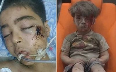 Syrian brothers Ali and Omran Daqneesh. Ten-year-old Ali (left) died on August 20, 2016 of injuries sustained in the bombing of his Aleppo apartment block, days after the image of 5-year-old Omran (right), shell-shocked and covered in dust after the attack, caused outrage around the world. (photos: Twitter and AP)
