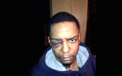 Taj Patterson was allegedly beaten by a group of Hasidic Jews in Brooklyn in 2013. (Screenshot from YouTube via JTA)