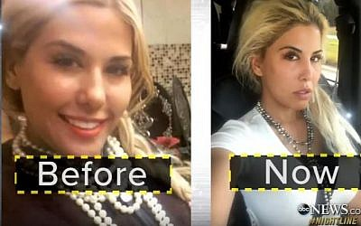 Tiffany Taylor before and after shots after having surgery to look like Ivanka Trump. (Screen capture: YouTube)