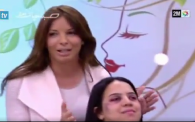 "Segment from Moroccan TV program ""Sabahiyat"" on how to use makeup to cover up signs of domestic violence. (Screen capture: Twitter)"