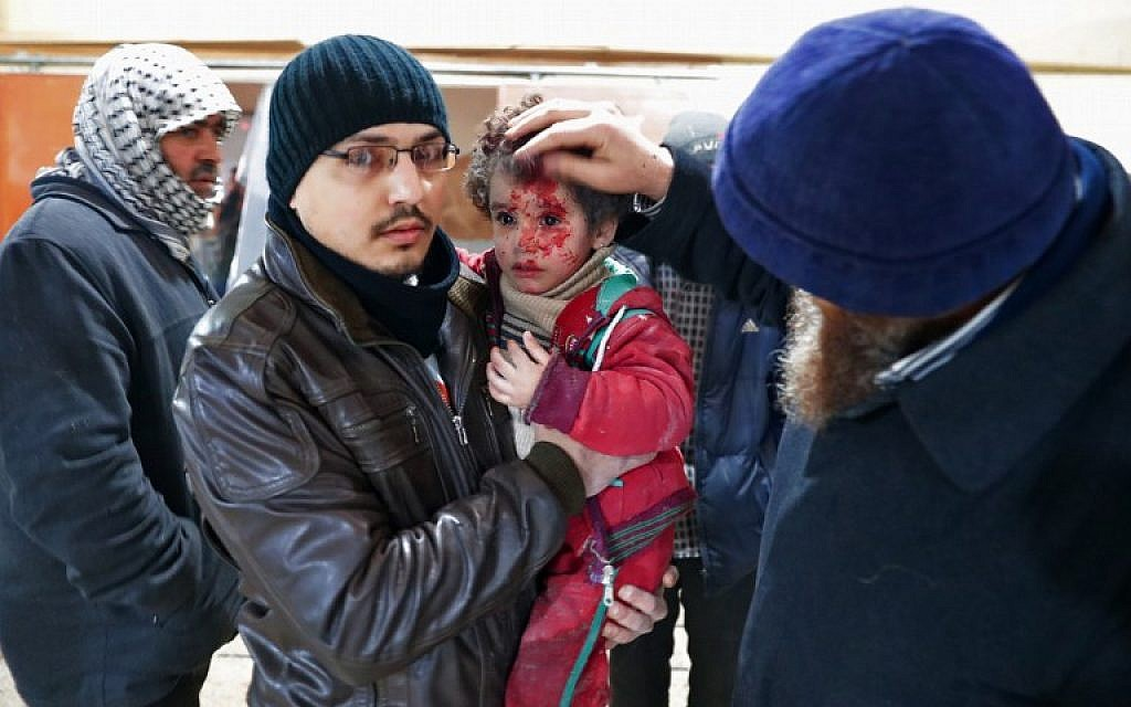 A wounded Syrian child is treated at a makeshift hospital in the rebel-held town of Douma, on the eastern outskirts of Damascus, following reported air strikes on December 29, 2016.  (AFP PHOTO/Abd Doumany)