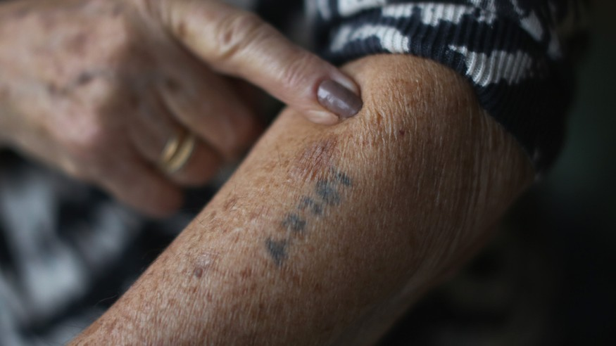 A Holocaust survivor shows her number tattoo. (Christopher Furlong/Getty Images via JTA)