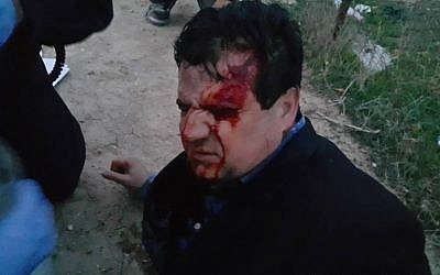 Arab Joint List leader MK Ayman Odeh was allegedly hit with a rubber bullet during a protest against house demolitions in the Negev town of Umm al-Hiran on January 18, 2017. (Courtesy/Arab Joint List)