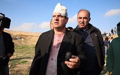 Arab Joint List leader MK Ayman Odeh was injured during a protest against house demolitions in the Negev town of Umm al-Hiran on January 18, 2017.  Here he is holding the sponge-tipped bullet that allegedly injured him. (Courtesy/Arab Joint List)