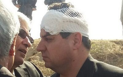MK Ayman Odeh of the Joint List at the scene of a fatal incident in the Bedouin village of Umm al-Hiran, where he was injured, on Wednesday, January 18, 2017 (Dov Lieber/Times of Israel)