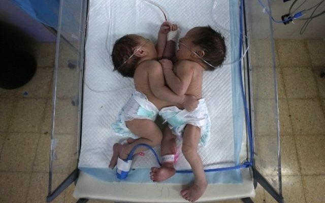 Conjoined newborn twins Acil and Hadil receive treatment at a maternity hospital in the West Bank city of Hebron on March 16, 2017. / AFP PHOTO / HAZEM BADER