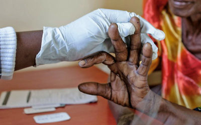 An elderly woman gets tested for malaria at FIMRC Health Center III in Bududa district, eastern Uganda, on April 7, 2017. (Esther MABABZI / AFP)