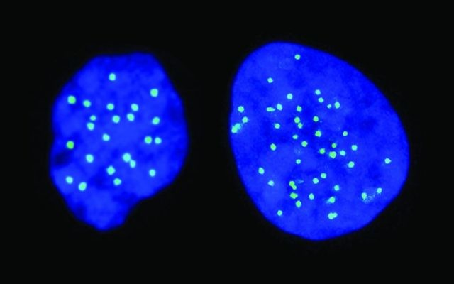A haploid cell on the left, with 23 chromosomes; a diploid cell on the right, with 46 chromosomes (Courtesy)