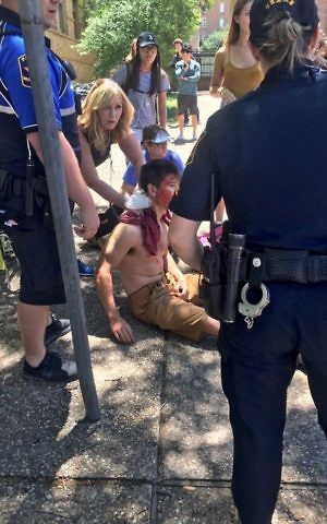 A person is treated by first responders after a deadly stabbing attack on University of Texas campus in Austin, Texas, Monday, May 1, 2017. (Emily Johnson via AP)