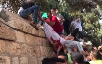 Screenshot from footage posted on Palestinian media showing what appears to be a body of a protester covered in a bloodied sheet being carried over a wall in East Jerusalem after being taken from the hospital July 22, 2017. (Screenshot/Ma'an)