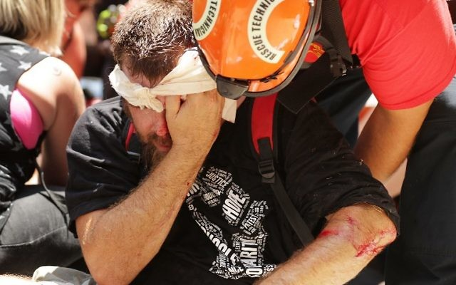 Rescue workers and medics tend to a man injured when a car plowed through a crowd of counter-demonstrators marching against white nationalists through the downtown shopping district August 12, 2017 in Charlottesville, Virginia.  (Chip Somodevilla/Getty Images/AFP)
