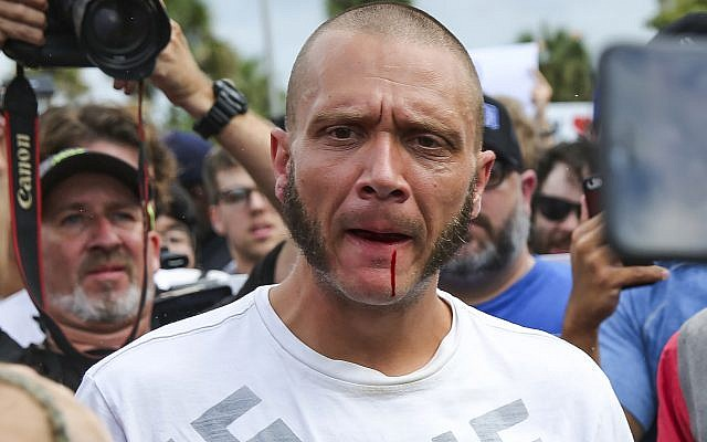 Blood runs from the lip of a man wearing a shirt with swastikas after he was punched by a protester outside a University of Florida auditorium where white nationalist Richard Spencer was preparing to speak on October 19, 2017 in Gainesville, Fla. (Will Vragovic/Tampa Bay Times via AP)
