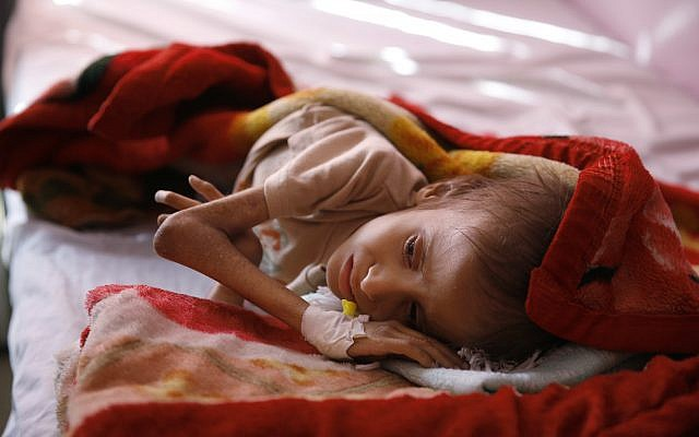 In this January 24, 2016 photo, a malnourished child lies in a bed waiting to receive treatment at a therapeutic feeding center in a hospital in Sanaa, Yemen. (AP Photo/Hani Mohammed, File)