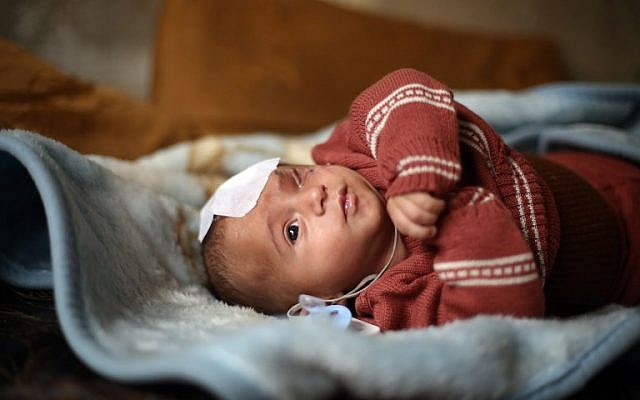 A picture taken on December 24, 2017, shows Syrian baby Karim Abdallah, who lost an eye as well as his mother in government shelling on Ghouta, being pictured inside his family home in the town of Beit Sawa in Syria's besieged eastern Ghouta region. (AFP PHOTO / Amer ALMOHIBANY)