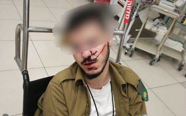 A Druze soldier attacked and beaten by other soldiers is seen at hospital (Facebook photo, family)
